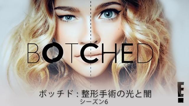 【海外 ドラマ 無料】ボッチド:整形手術の光と闇 シーズン6